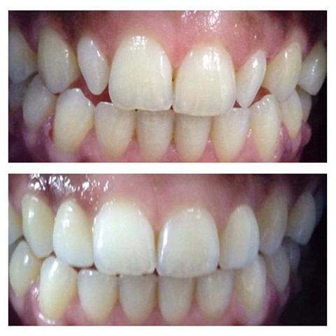 Broken tooth in Baroda
