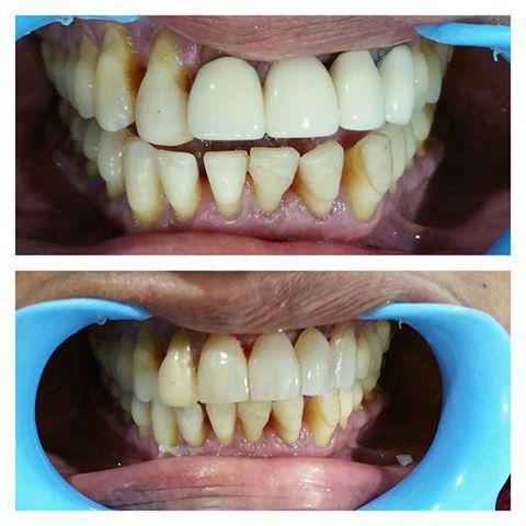 Dental clinic wisdom tooth removal in Vadodara