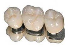 Porcelain crowns cost front teeth in Vadodara