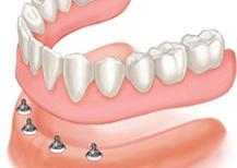 Dentures cost &amp dentist in Vadodara