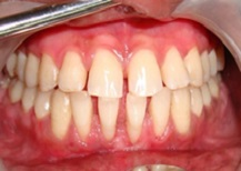 Gum Treatment cost in Vadodara