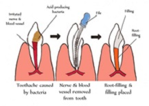 Root canal treatment cost in Vadodara